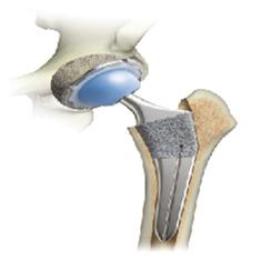 人工関節・骨折合材料